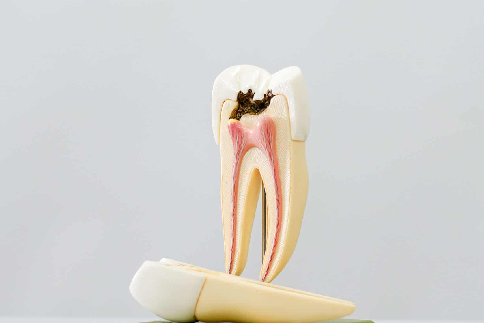 Restoration and Fillings